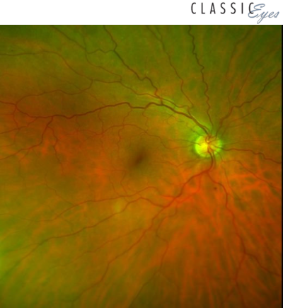 optomap diabetic retinopathy